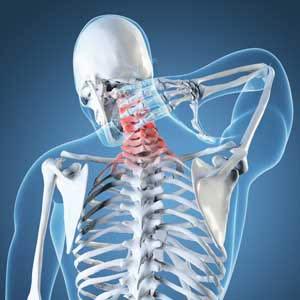neck-pain-posture-problem
