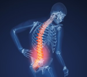 x-ray-lower-back-031611_cropped-300x268